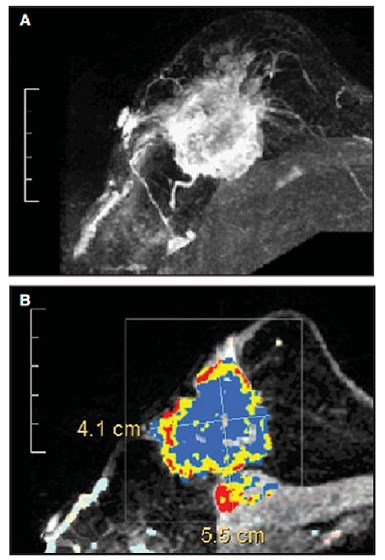 In high-risk women undergoing MRI screening, those with background parenchymal enhancement more likely to develop breast cancer.