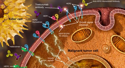 Neoadjuvant meds for HER2+ breast cancer