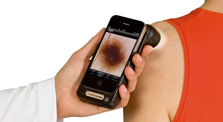 Skin Cancer Early Diagnosis and Detection Rates Increased by New App