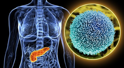 Efficacy of Second-Line Oxaliplatin, Leucovorin, and Fluorouracil in Gemcitabine-Refractory Pancreatic Cancer