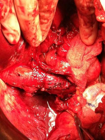 carcinoma doubling image