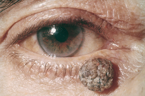 Melanoma on the Eyelid