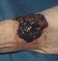 Dabrafenib, Trametinib Decrease Death Risk in Metastatic Melanoma