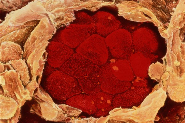 In Non-Small Cell Lung Cancer, Pulmonologist Management Beneficial