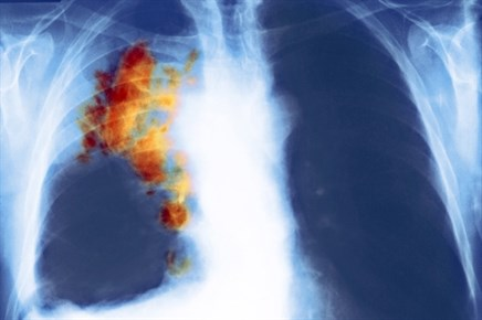 Addition of Necitumumab Improves in Survival in Advanced Lung Cancer