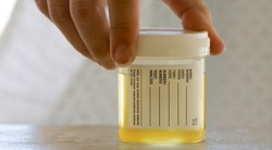 Urine Test for Cervical Human Papillomavirus (HPV) Proves Accurate