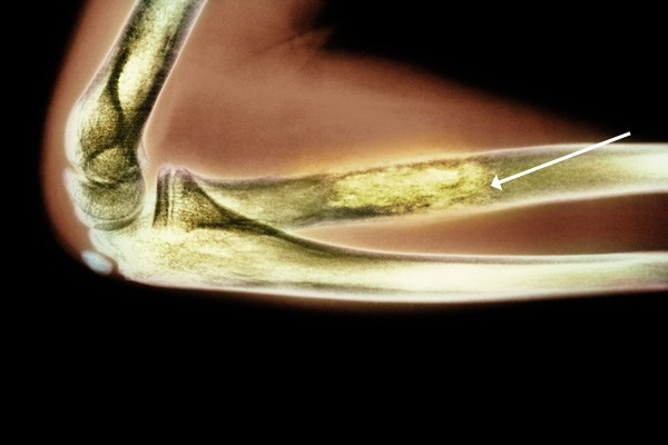 Ifosfamide for Treatment of Osteosarcoma Improves Limb Salvage Rate
