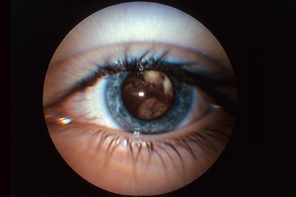 Multiple Tumors of the Retina
