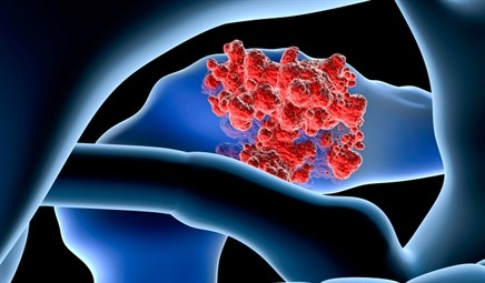 FOLFIRINOX May Have Longer Median OS Than Gemcitabine for Pancreatic Cancer