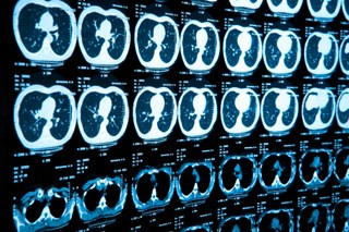 ACS Recommends Lung Cancer Screening with Low-Dose CT