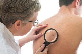 Risk for New Primaries Higher in Stage III/IV Melanoma