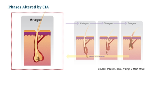 Slide 4: Pathophysiology of CIA