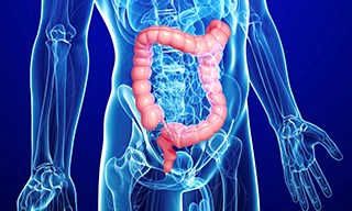 Understanding Basic Biology of Colon Cancer Will Increase 'Druggable' Targets