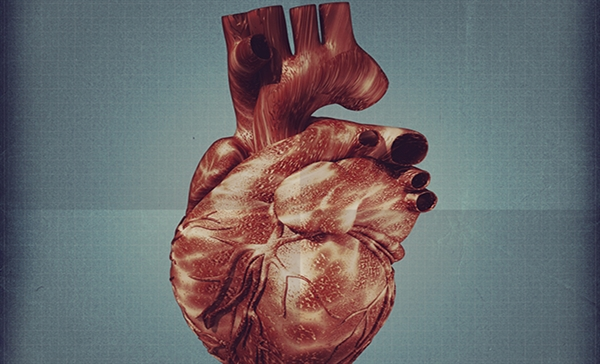 Slide 14: Cardiotoxicity