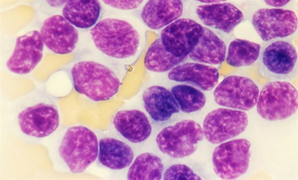Slide 7: Anemia
