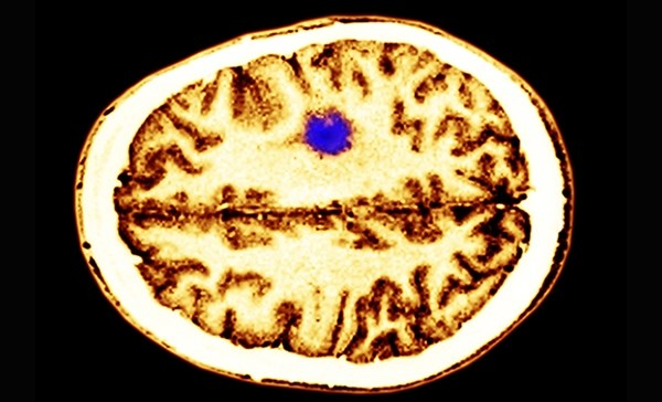 Gliomas classified by tumor markers were characterized by distinct mechanisms of pathogenesis, ages at onset and overall survival.