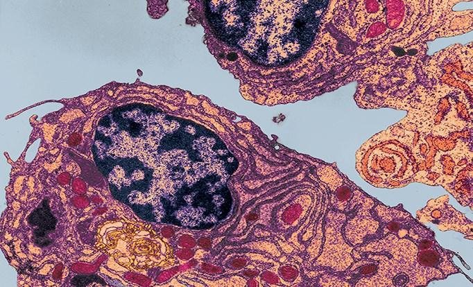 Ixazomib Plus Lenalidomide and Dexamethasone Well-Tolerated in Newly Diagnosed Multiple Myeloma