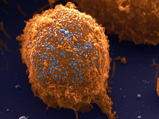 Harnessing the Power of HIV to Kill Cancer