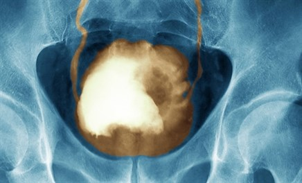 For Patients With Bladder Cancer, Inadequate Biopsies May Increase 5-Year Mortality