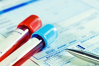 A new experimental blood test can help distinguish malignant cells released by solid tumors.