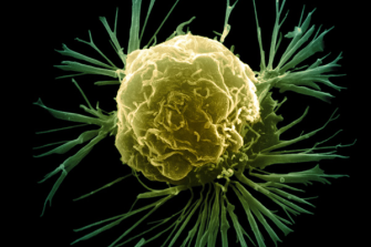 Study Targets Mutations Causing Breast Cancer Metastasis