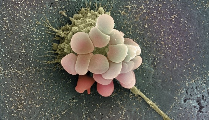 Reprogramming Ovarian Cancer Cells Boosts Recognition by Immune System