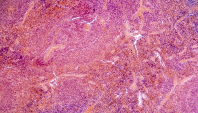 MicroRNA Expression May ID Pancreatic Cancer