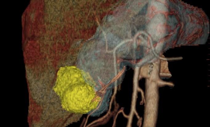 Docetaxel and 5-Fluorouracil: Promising Novel Regimen for Advanced Gastric Cancer