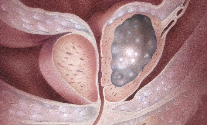 For Patients with Metastatic Castration-Resistant Prostate Cancer, Abiraterone Delays Disease Progression