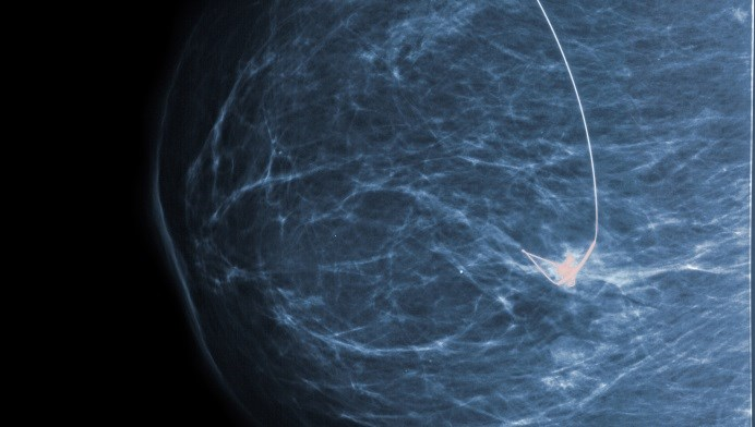 For HER2-Positive Breast Cancer, Trastuzumab More Effective Than Lapatinib