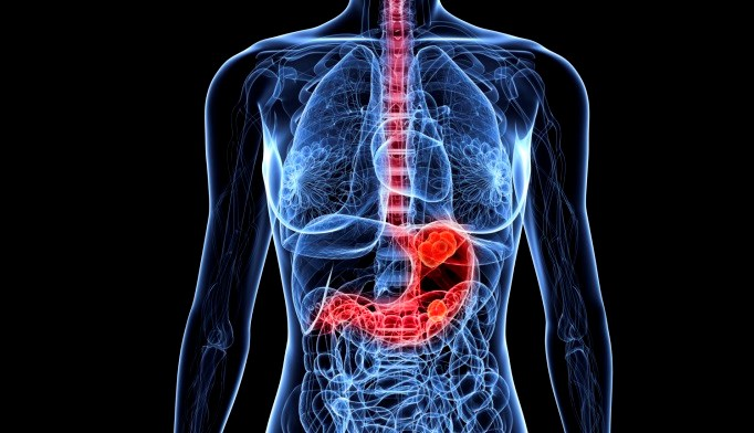 Apatinib Associated With Improved Survival in Advanced Gastric Cancer