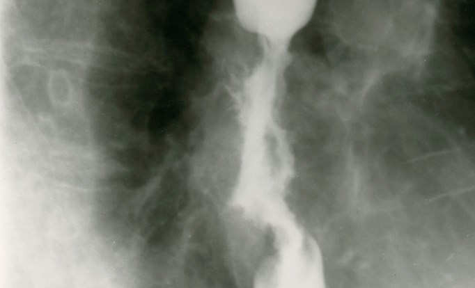 Radiotherapy in Esophageal Cancer Improves Dysphagia