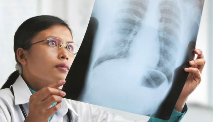 Clinical Decision Support Technology Improves Symptom Management for Patients with Lung Cancer