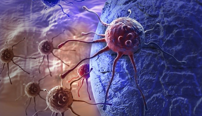 Beleodaq Earns FDA Approval for Peripheral T-cell Lymphoma