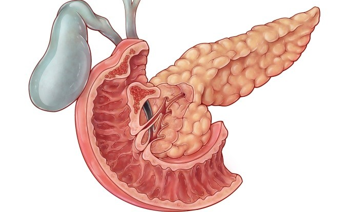 For Pancreatic Cancer, Possible Biomarker Identified