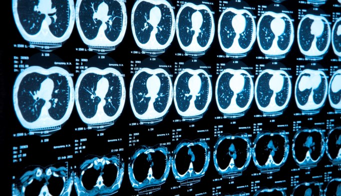 Low-dose CT Lung Cancer Screening Will Double Early Detection Rate
