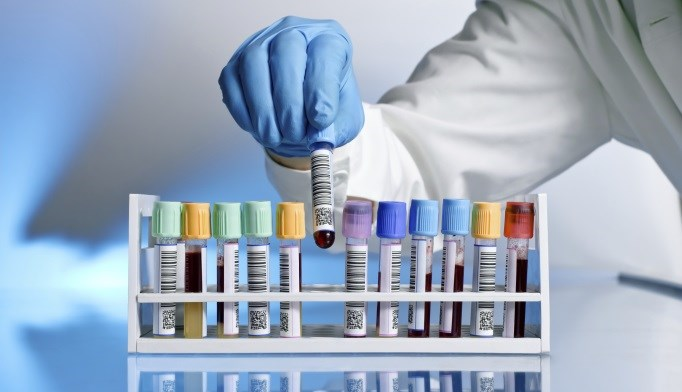 Levels of Four Proteins That Protect Against Immune Attack Lower in Type 1 Diabetes