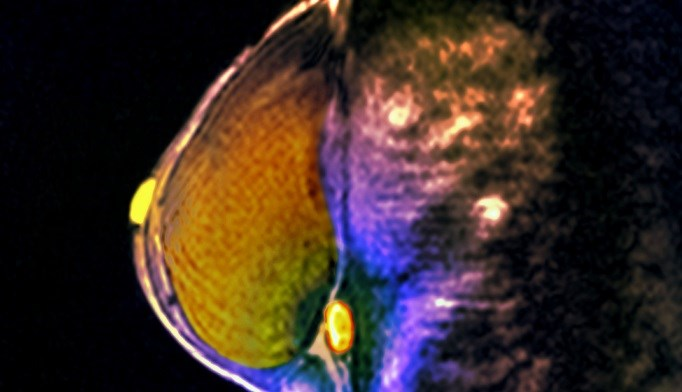 MRI Catches Breast Cancer Early in Hodgkin Lymphoma Survivors