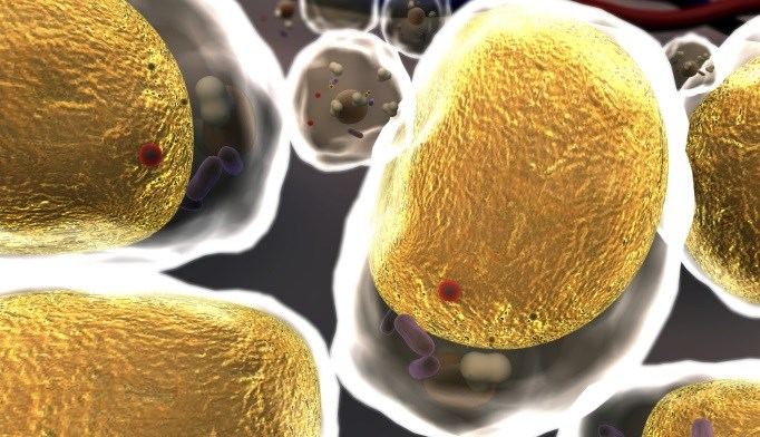 Prostate Cancer Recurrence Linked to High Cholesterol