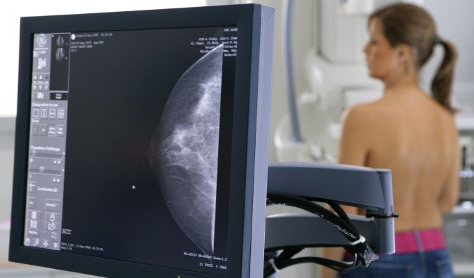 3D Mammography Improves Cancer Detection Rate, Reduces Recall Rate