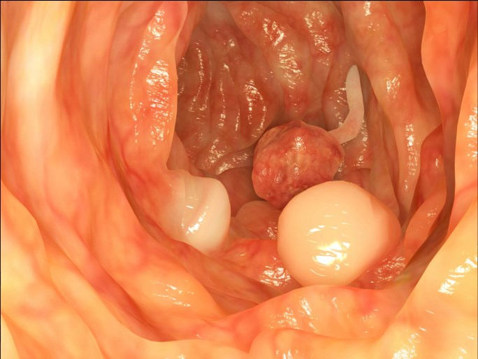In Colorectal Cancer, Chemo-Induced Volume Elevation Linked with Postoperative Complications