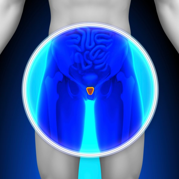 Primary Androgen-Deprivation Therapy (ADT) for Localized Prostate Cancer: Potential for Harm May Outweigh Benefit in Low-Risk Disease