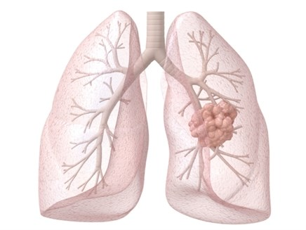 For Advanced Non-Small Cell Lung Cancer (NSCLC), Nintedanib Improves Overall Survival Without Reducing Quality of Life