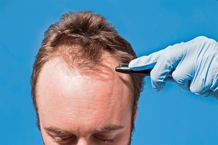 Certain Kind of Baldness at Age 45 Linked to Increased Risk of Prostate Cancer