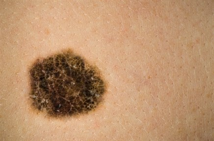 Survival Improved With Evolving Treatment Approaches for Metastatic Melanoma