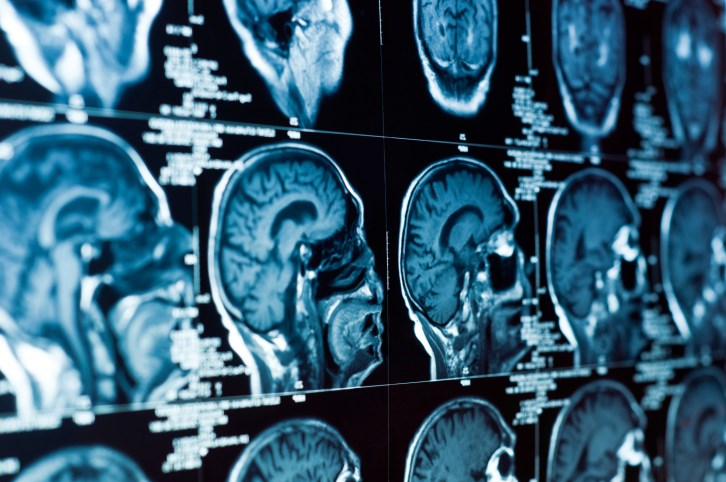 Patients With Meningioma Have Inferior Quality of Life Post-surgery