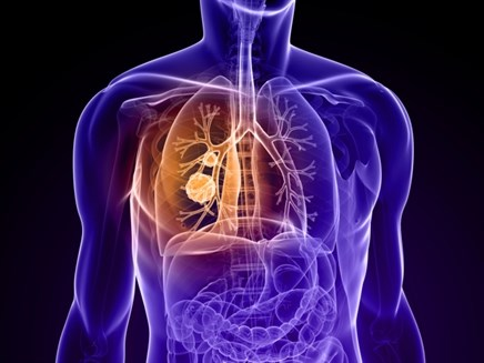 Sunitinib Showing Promise for Small-Cell Lung Cancer