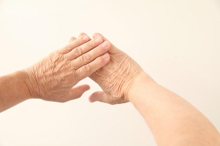 Prophylactic Effect of Urea-Based Cream on Sorafenib-Associated Hand-Foot Skin Reactions