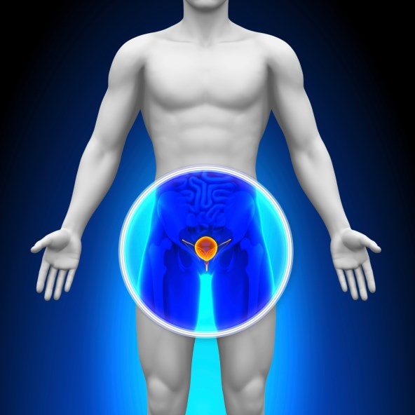 Some researchers are looking at the evidence and urging for a middle ground in prostate cancer screening guidelines