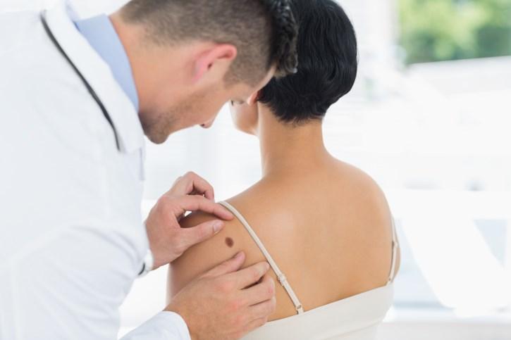 Ipilimumab Plus Dacarbazine Provide Survival Benefit in Advanced Melanoma